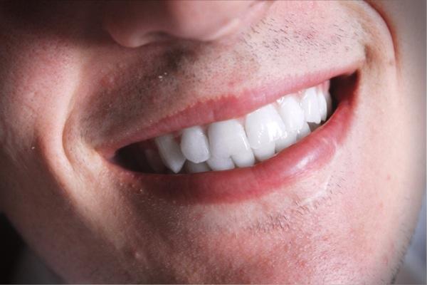 Jak na domácí bělení zubů